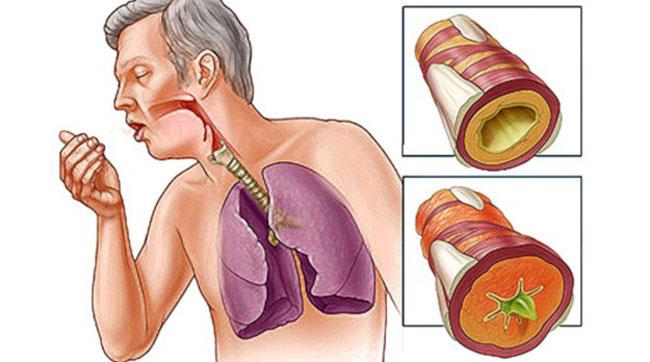 Кашель – это крайне распространенный симптом многих заболеваний дыхательной системы