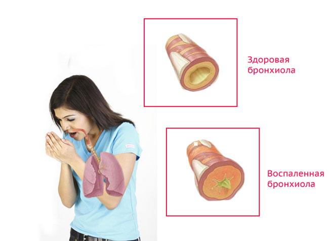 Лечение бронхита производиться разными методами