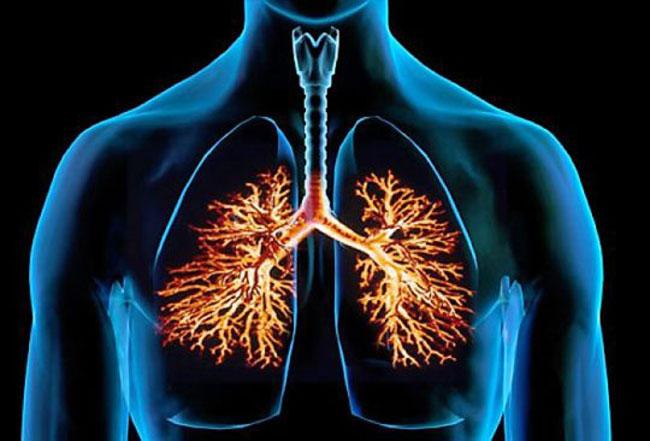 Бронхи – воспалительное заболевание бронхолегочной системы
