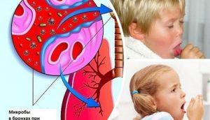 Проблема кашля у ребенка остро стоит во многих семьях