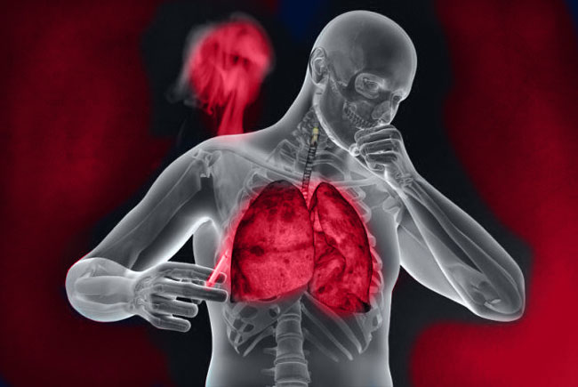 Бронхит – серьёзное заболевание бронхолегочной системы