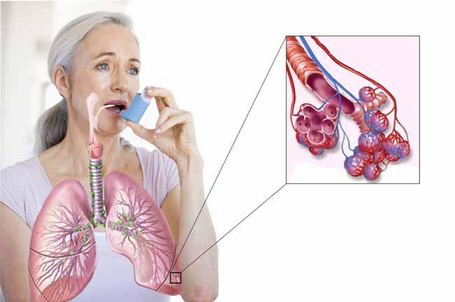 Бронхиальная астма – это хроническое заболевание
