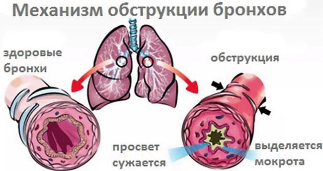 Обструктивный бронхит – это диффузное заболевание бронхолегочной системы